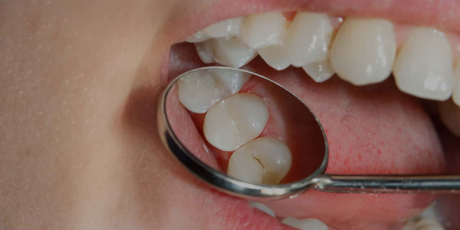 Fillings And Inlays